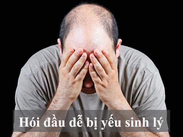 Hói đầu cũng là một triệu chứng yếu sinh lý