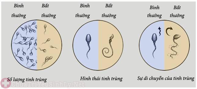 Chất lượng tinh trùng phụ thuộc vào nhiều yếu tố khác nhau