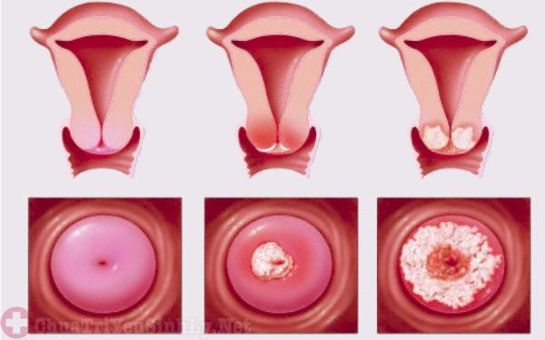 Phụ nữ mắc bệnh viêm cổ tử cung cũng khiến nam giới bị yếu sinh lý nhưng tinh trùng tốt vẫn không thể sinh con