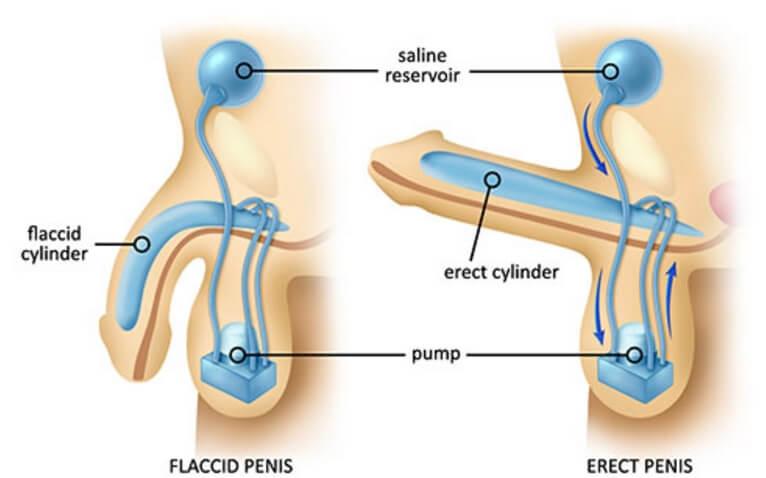 Lạm dụng gel Emla chống xuất tinh sớm có thể gây rối loạn cương dương