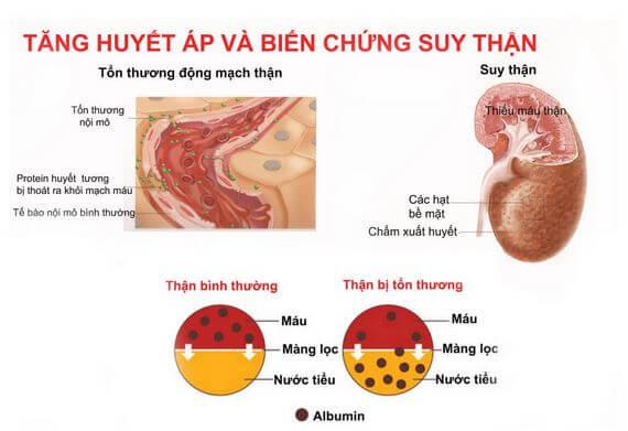 Thận yếu gây tăng huyết áp và biến chứng suy thận